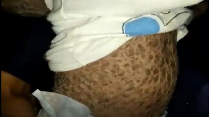 بیماری عجیب پوستی کودک ایرانی/ فیلم