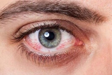 مهمترین دلایل بروز قرمزی چشم و نحوه درمان آن