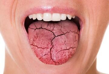 علت خشکی دهان چیست؟ + نحوه درمان