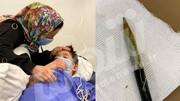 پسر ۸ ساله تبریزی یک مداد را قورت داد! / عکس
