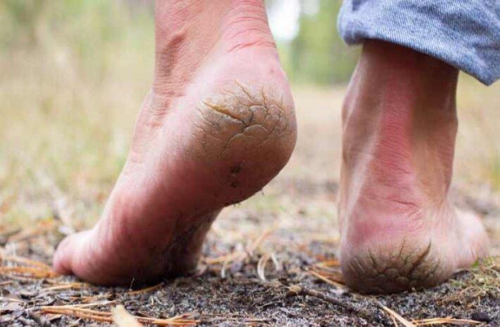 کمبود این ویتامین باعث ترک و خشکی پا میشود