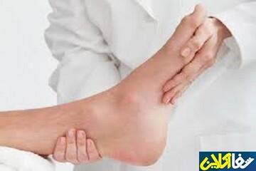 نشانههای بیماری نقرس و نحوه درمان آن
