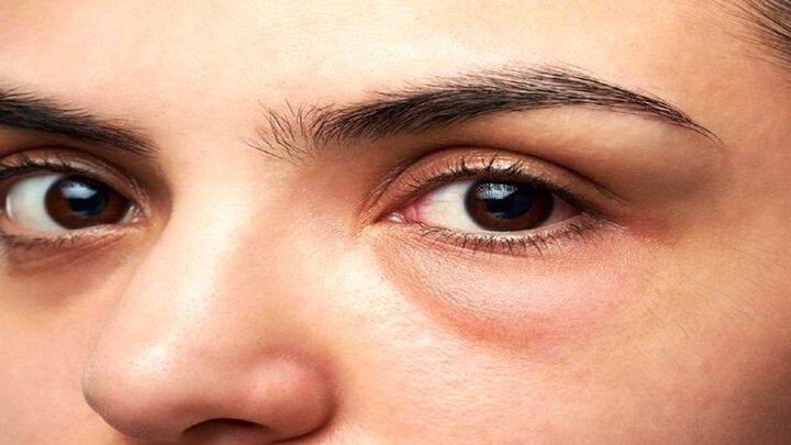 دلیل پف کردن زیر چشم چیست؟   درمان پف زیر چشم با چند روش ساده و خانگی