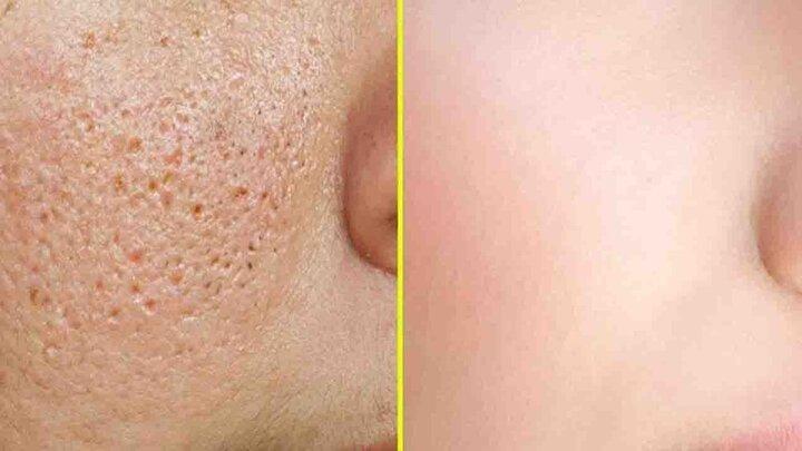 عادات اشتباهی که باعث مسدود شدن منافذ پوست میشوند