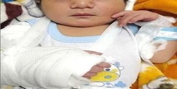 ماجرای جنجالی تولد نوزاد خرمشهری با دست شکسته چه بود؟