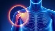 آشنایی با بیماری شانه منجمد و نحوه درمان