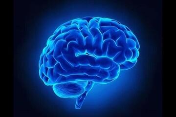 آشنایی با چند راه اصلی برای پیشگیری از سکته مغزی