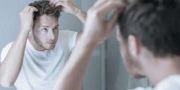 نحوه پیشگیری و درمان سفید شدن موها