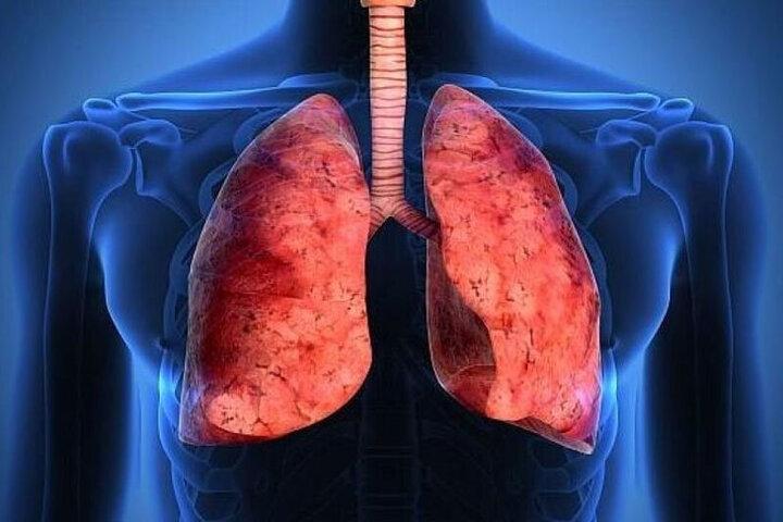 از کجا بفهمیم ریههایمان درگیر کرونا شده است؟ / فیلم