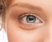 علت تیرگی زیر چشمها و راههای درمان سریع آنها