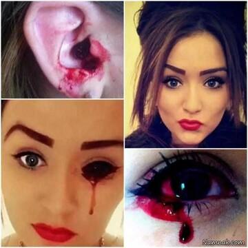 دختر ۱۷ سالهای که از چشمانش خون می بارد / عکس