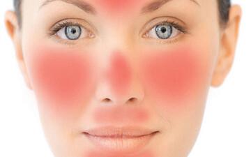درمان خانگی قرمزی پوست صورت + علایم