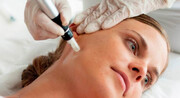 روشی جدید برای اصلاح ناهمواریهای پوستی