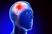 لخته مغزی دقیقا چیست؟