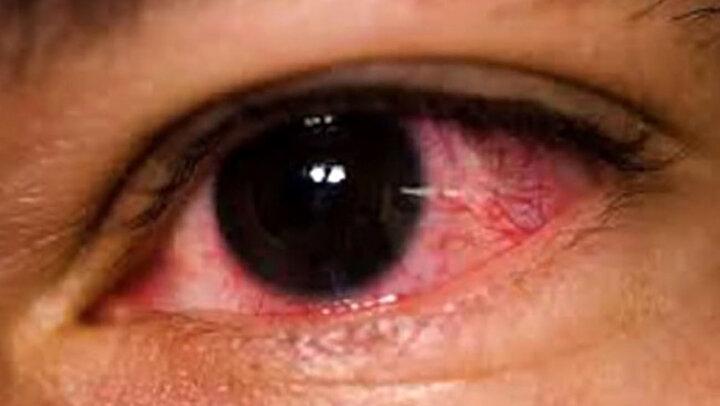 مهمترین دلایل قرمز شدن چشمها چیست؟ از علت تا درمان