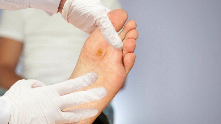 روشهای درمان خانگی قارچهای پوستی