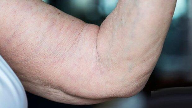 درمان طبیعی سلولیت پوست در خانه