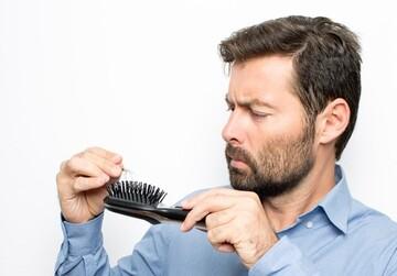 دلیل ریزش مو در مردان چیست؟ + نحوه درمان