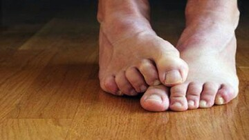 درمان عرق کردن زیاد پا با چند روش ساده و خانگی