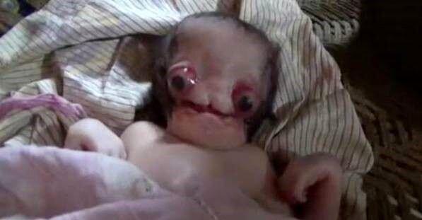 تولد نوزاد عجیب الخلقه و ترسناک در هند   نوزاد بدون گوش و شبیه موجودات فضایی / عکس