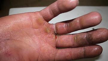 گیرکردن انگشتر در دست جوان تهرانی دردسرساز شد! / عکس