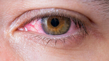دلیل اصلی قرمز شدن چشمها چیست؟