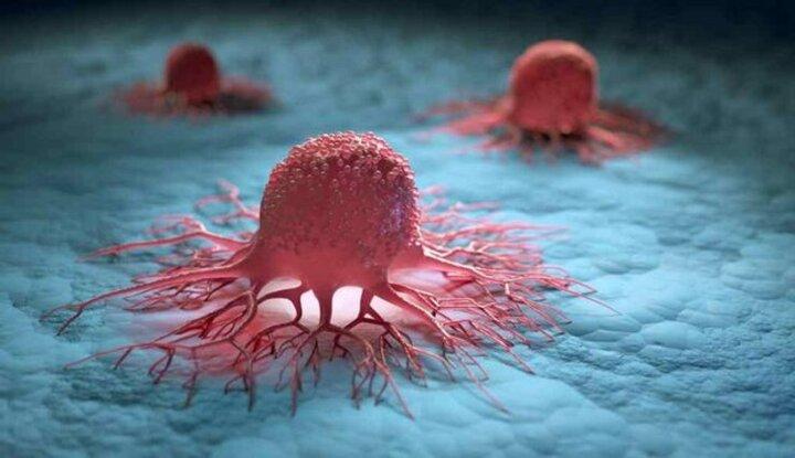 کشف روشی جدید برای جلوگیری از گسترش سلولهای سرطانی