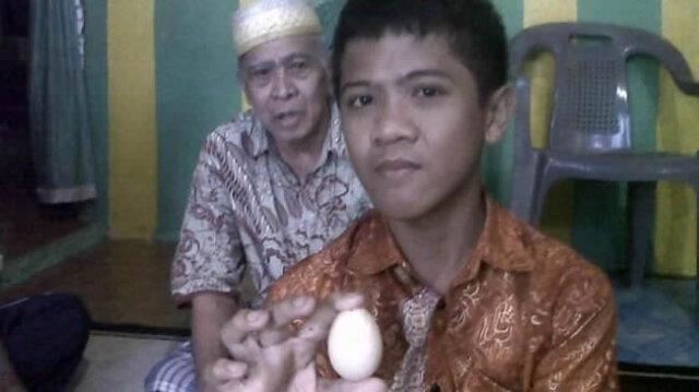 پسری که تخمگذاری میکند؛  در ۲ سال ۲۰ تخم مرغ گذاشت! / فیلم و تصاویر