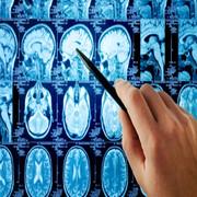 علت بروز تومورهای هیپوفیز