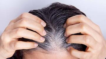 علت سفیدی مو چیست؟   درمان سفیدی مو با چند ترفند ساده و طبیعی در منزل