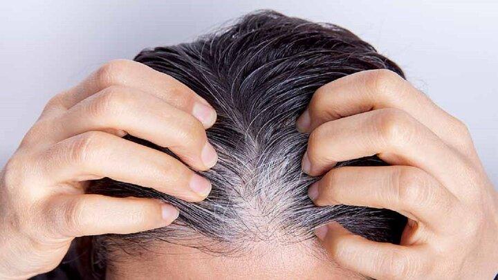 علت سفیدی مو چیست؟ | درمان سفیدی مو با چند ترفند ساده و طبیعی در منزل