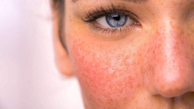 بیماری سندرم پوست پرتقال چیست؟ + نحوه پیشگیری و درمان