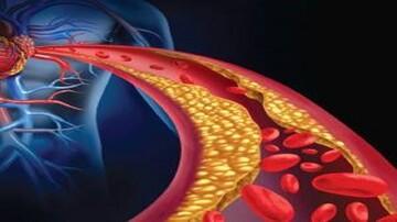 بهترین روش پیشگیری از چربی خون