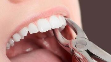 چند نکته مهم پس از کشیدن دندان عقل