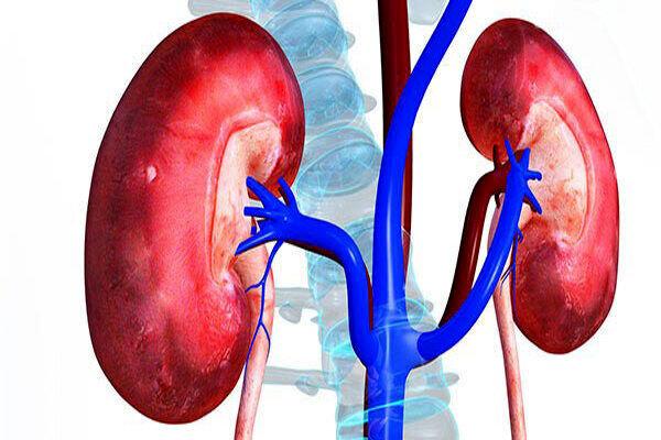 علائم بیماری مرگبار سرطان کلیه  که با سنگ کلیه اشتباه گرفته میشود