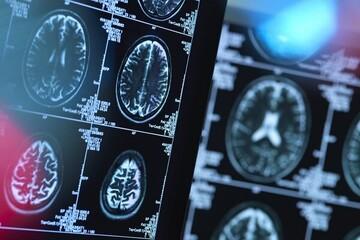 کشف عارضه باورنکردنی ابتلا به کرونا بروی مغز