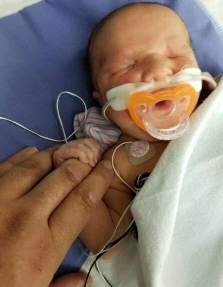 تولد نوزاد بدون چشم در بیمارستان! / عکس