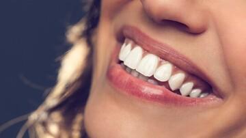 سفید کردن سریع دندانها با چند روش کمهزینه
