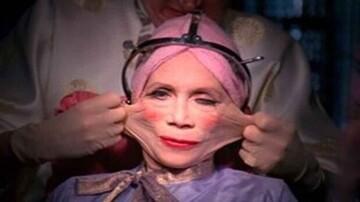 عجیبترین جراحیهای زیبایی دنیا که با شنیدن آن شگفتزده میشوید