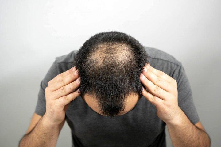 مشکلاتی که استرس بر سر موهایتان میآورد؟