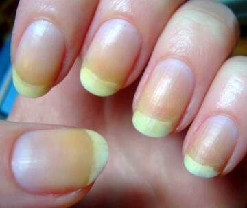 علت زرد شدن ناخن های دست و پا چیست؟ + پیشگیری و درمان