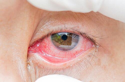 قرمز شدن چشم؛ از علت تا درمان