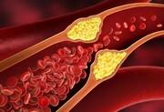 با این روشها چربی خون خود را به راحتی کاهش دهید!