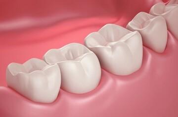 اتفاق جالبی که با کشیدن دندان عقل در بدنتان رخ میدهد
