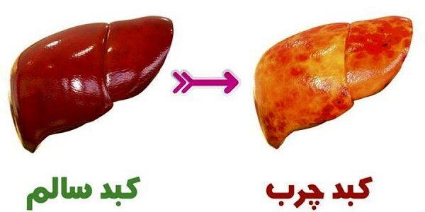 درمان فوری کبد چرب فقط با مصرف این میوهها؛ از لیمو و لبو تا توت و انگور