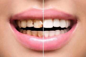 نقش سس گوجه فرنگی در سیاه شدن دندانها