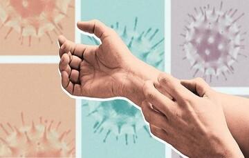 کرونا تا چند ساعت روی پوست زنده است؟