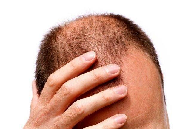 پیشگیری و درمان ریزش مو با مصرف این خوراکیها / عکس