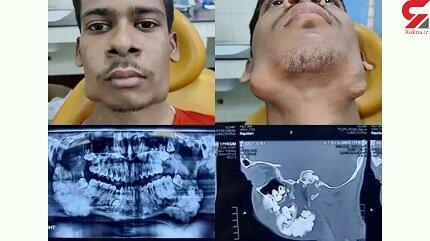 این پسر ۸۲ دندان اضافی در دهان دارد / عکس