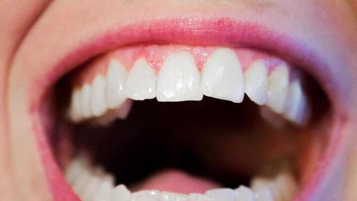 مرگ عجیب یک زن به دلیل قورت دادن دندان مصنوعی هنگام نوشیدن آب